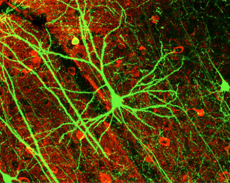 Ciudad Ciencia se plantea este jueves cómo se forma y se desarrolla el cerebro